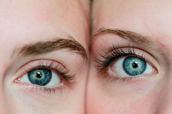 Immagine di occhi che presenta il servizio di Visita Ortottica offerto da Ottica Ranieri
